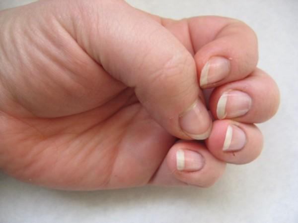 Pautas para los niños que se comen las uñas